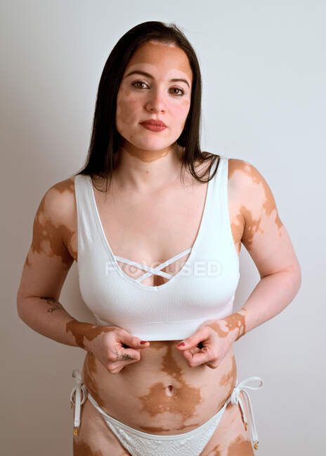 Young woman, with vitiligo disease, posing in the studio in a white bikini — Stock Photo