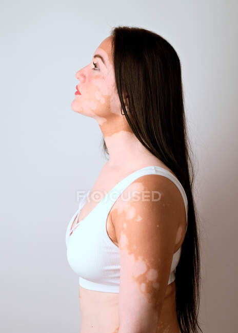 Side portrait of a young woman, a real vitiligo patient, posing in the studio — Stock Photo