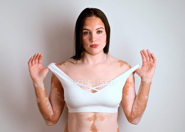 Portrait of a young woman, a real vitiligo patient, posing in the studio — Stock Photo
