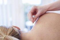 Donna che riceve agopuntura in spalla — Foto stock