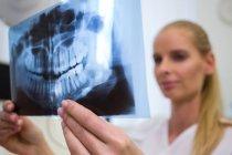 Dentista guardando la lastra di radiografia dentale in clinica — Foto stock