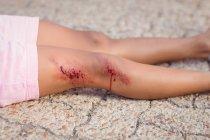 Primer plano de niña inconsciente caído en tierra después de accidente - foto de stock