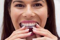Paziente donna che indossa l'apparecchio in clinica dentale — Foto stock