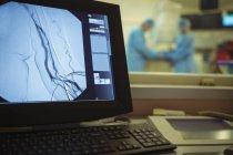 Close-up de operação na tela do computador no teatro de operação — Fotografia de Stock
