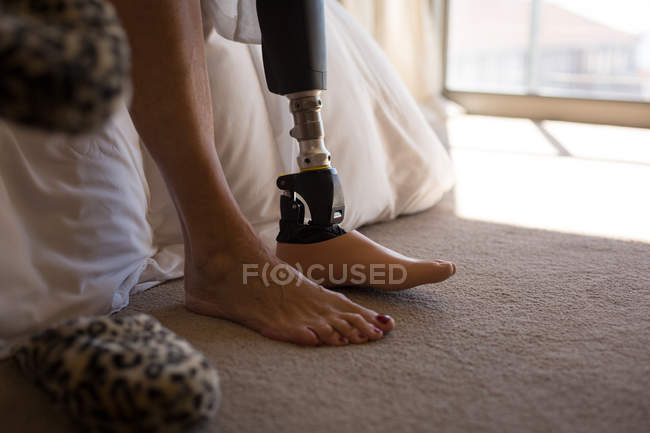 Low section of woman with prosthetic leg in bedroom at home. — Stock Photo
