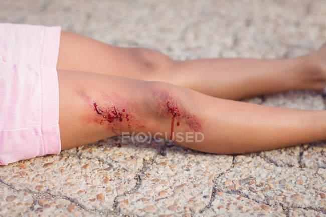 Gros plan d'une fille inconsciente tombée au sol après un accident — Photo de stock