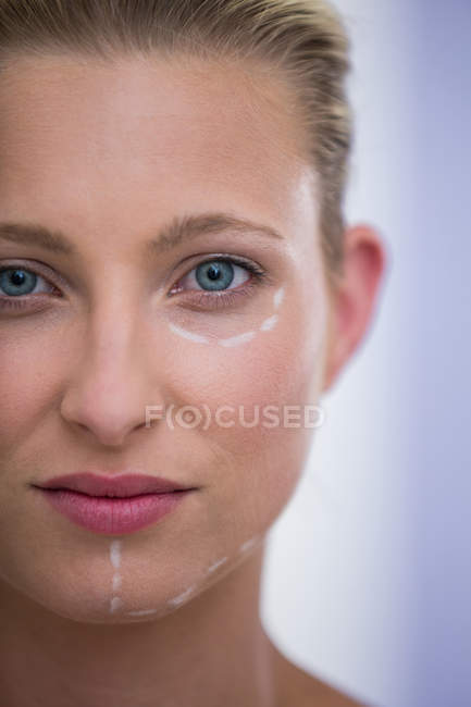 Close-up of woman with marks of face for botox procedure — Stock Photo