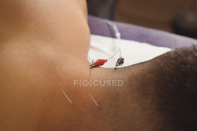 Close-up of patient getting electro dry needling on back of neck in clinic — Stock Photo