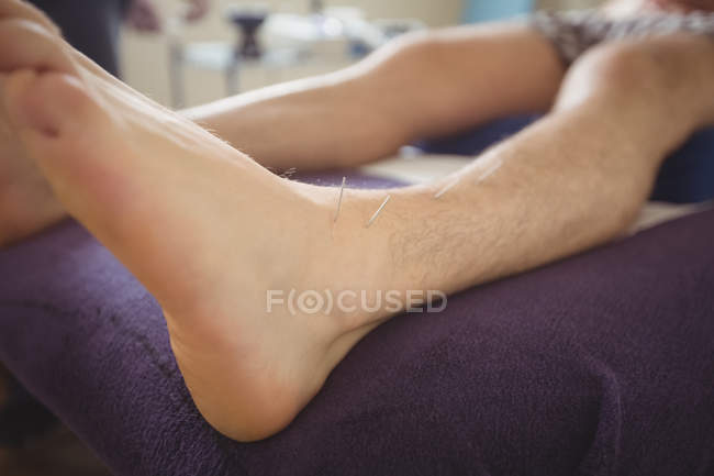 Close-up of patient getting dry needling on leg — Stock Photo
