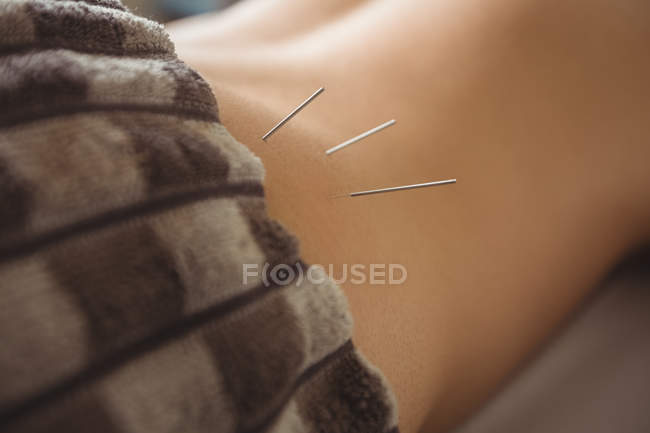 Close-up of male patient getting dry needling on waist — Stock Photo