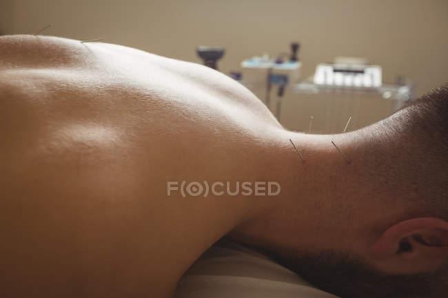 Primo piano del paziente che si asciuga con l'ago sul retro del collo — Foto stock