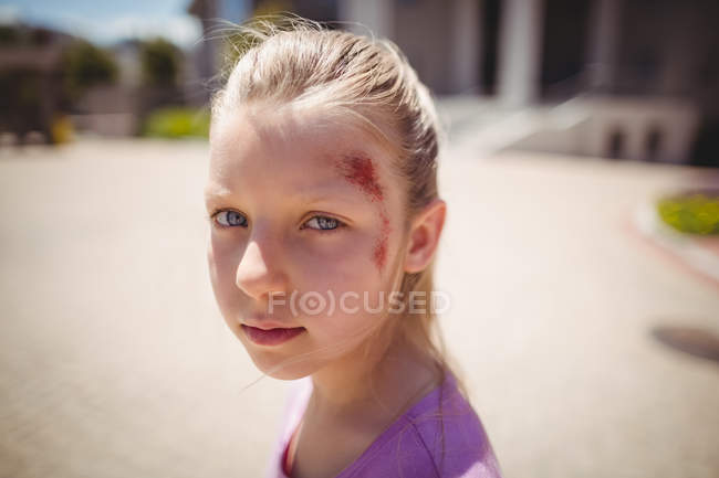 Portrait of injured girl on street — Stock Photo