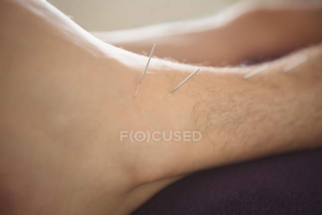 Primer plano del paciente recibiendo agujas secas en la pierna - foto de stock