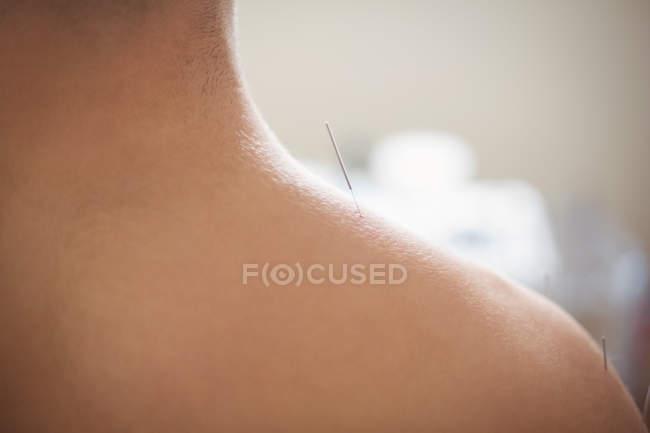 Primo piano del paziente di sesso maschile che si asciuga con l'ago sulla spalla — Foto stock
