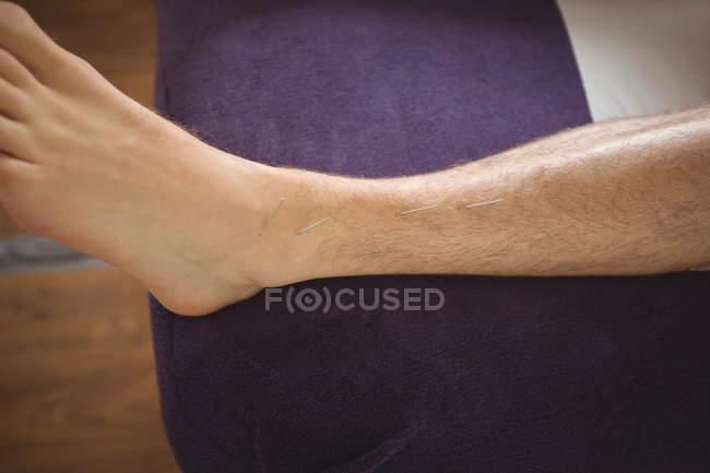Primo piano del paziente che si asciuga con l'ago sulla gamba — Foto stock