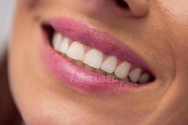 Primo piano di donna sorridente bocca e denti — Foto stock