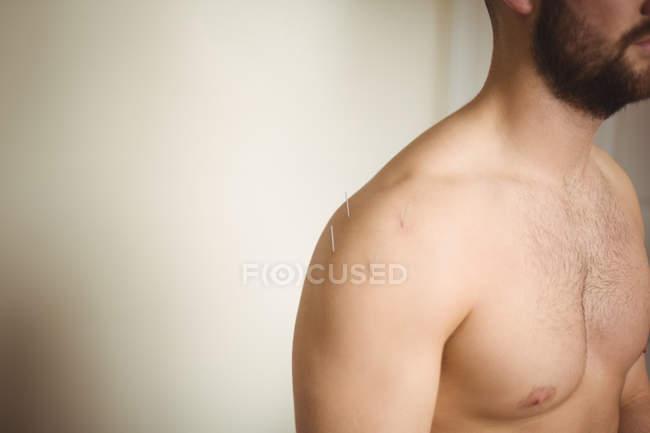 Primer plano del paciente masculino que dry needling en hombro - foto de stock