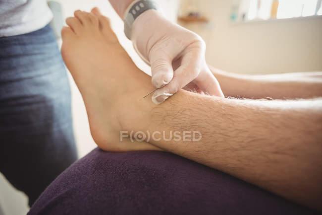 Закри фізіотерапевт, виконуючи сухий пункція на ноги пацієнта в клініку — стокове фото