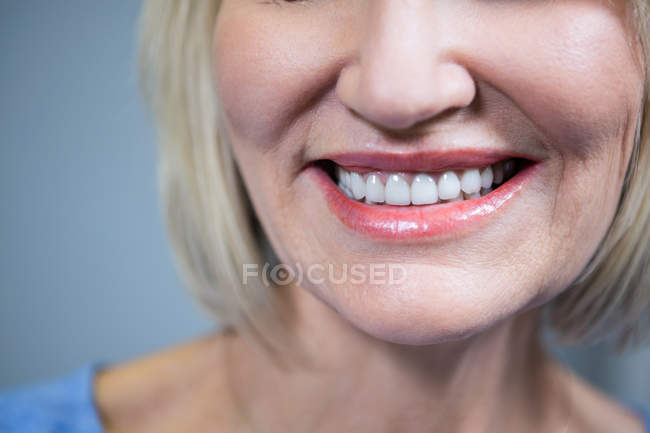 Close-up of smiling woman's white teeth — Stock Photo