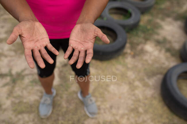 Sore hands with blisters of mixed race woman wearing pink t shirt at a boot camp training session, exercising, standing next to tyres. Outdoor group exercise, fun healthy challenge. — Stock Photo