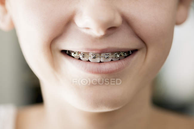 Close-up of girl mouth with braces smiling — Foto stock