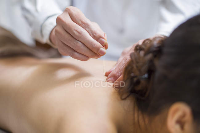 Woman receiving acupuncture in traditional chinese clinic — Stock Photo