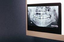 Disparo de rayos x dental en caja de luz en pared - foto de stock