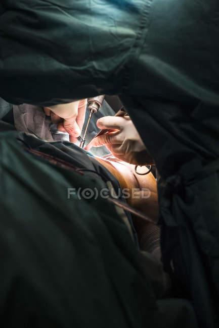 Cirurgiões operação de processamento de mãos — Fotografia de Stock