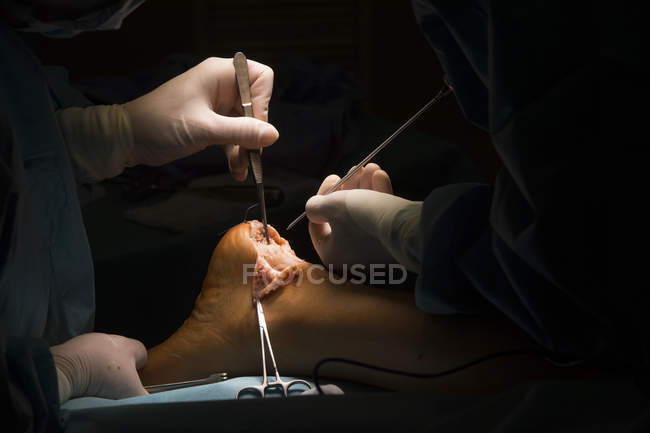 Surgeons hands making operation — Stock Photo