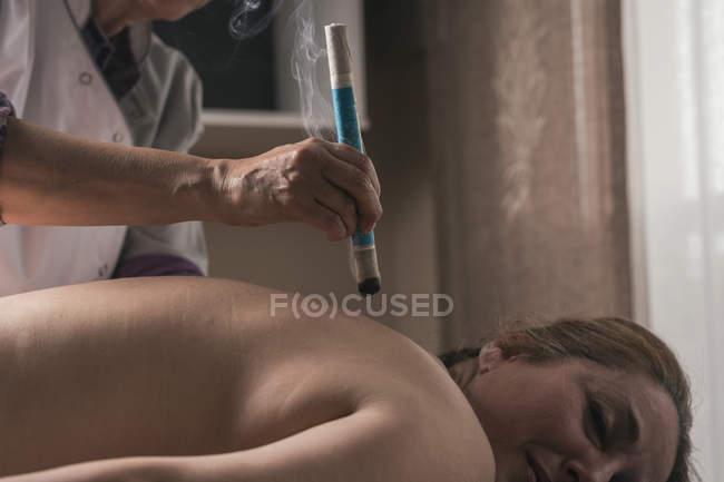 Terapista che esegue il trattamento di moxibustione — Foto stock