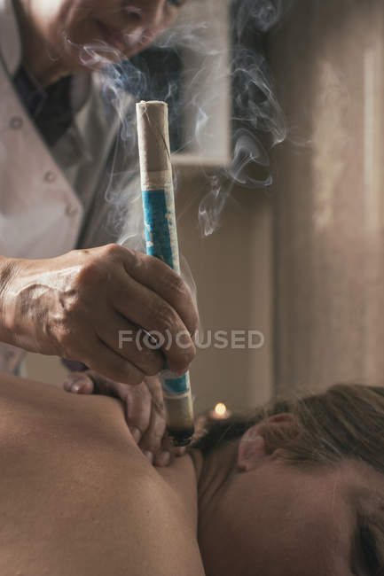 Terapeuta di effettuazione del trattamento di moxibustione — Foto stock