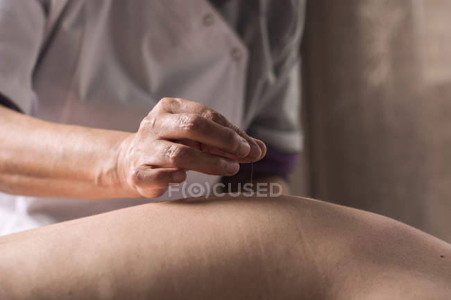 Therapist performing acupuncture treatment — Stock Photo
