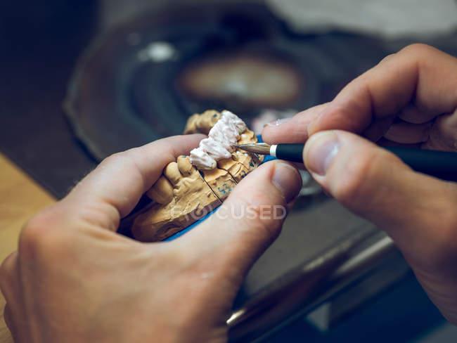 Technicien dentaire appliquant l'émail sur le moule — Photo de stock