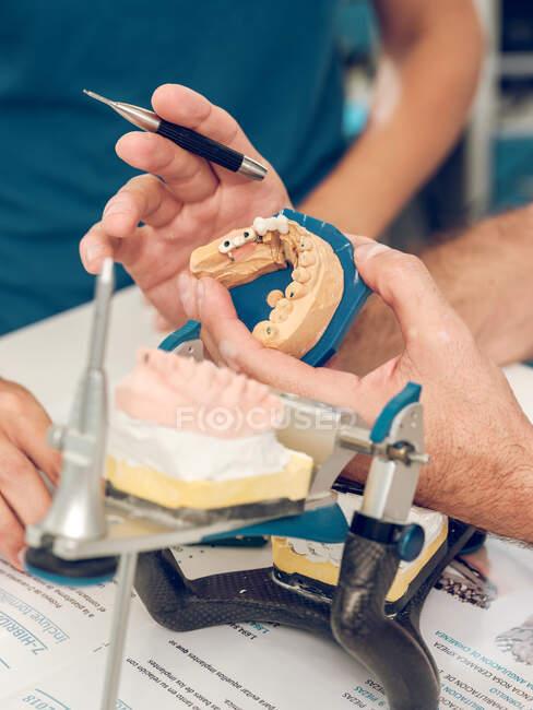 Manos del técnico haciendo prótesis dentales - foto de stock