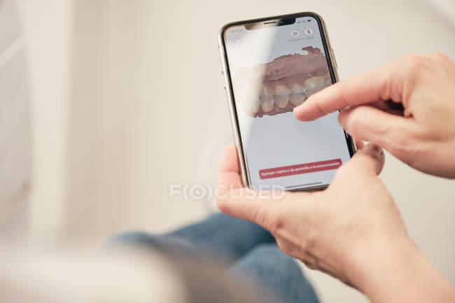 Mani di dentista anonimo che dimostra smartphone con scansione dei denti a paziente irriconoscibile in clinica — Foto stock
