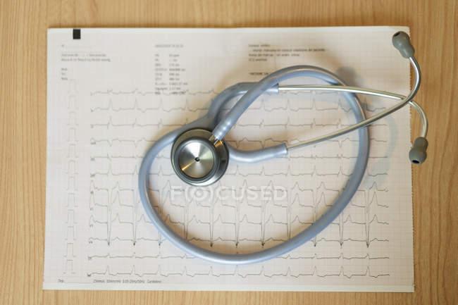 Медицинский стетоскоп и кардиограмма на бумаге на столе — стоковое фото