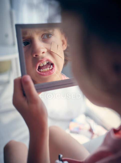 Riflessione in specchio quadrato di faccia di capretto con benda sulla guancia studiando dente di latte con bocca aperta in camera — Foto stock
