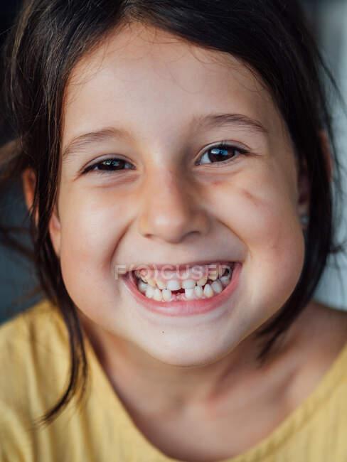 Ragazza sdentata sorridente per la fotocamera — Foto stock