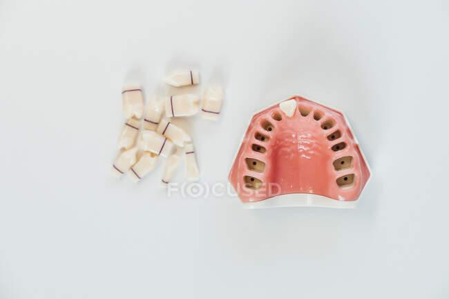 Fechamento de uma prótese em um laboratório — Fotografia de Stock