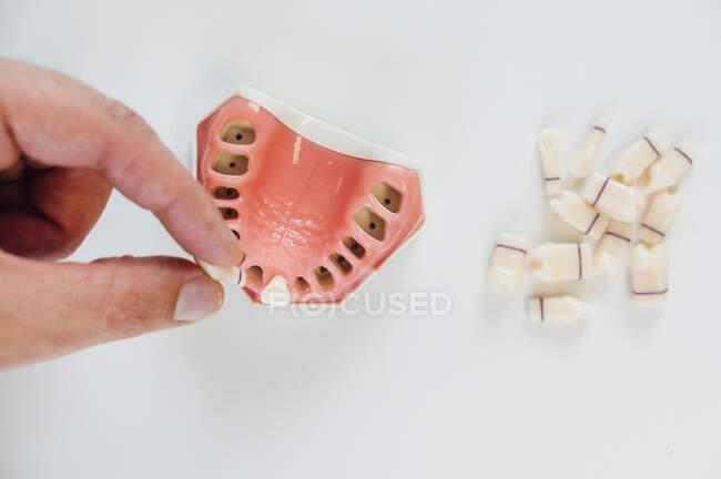 Primo piano di una protesi in un laboratorio — Foto stock