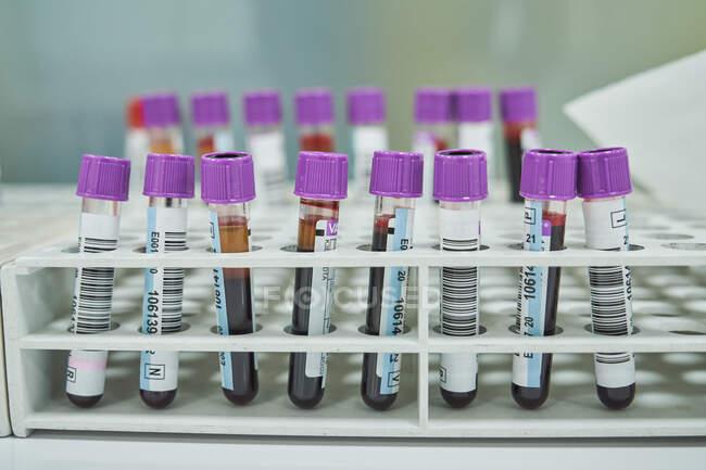 Gros lot de flacons médicaux avec des échantillons de sang disposés en récipient dans un laboratoire hospitalier moderne — Photo de stock