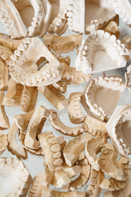Top view of pile of various dental gypsum models of jaws in lab — Stock Photo