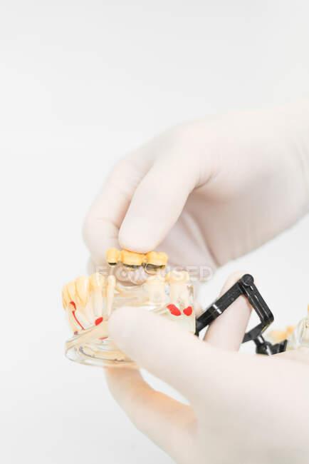 Cosecha dentista anónimo en guantes de látex protector que muestra prótesis dentales con implantes de cera en la clínica moderna - foto de stock