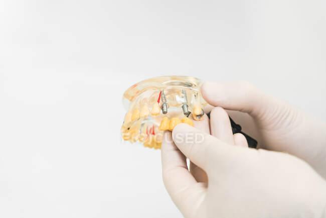 Crop dentista anonimo in guanti protettivi in lattice che mostra protesi dentali con impianti cera in clinica moderna — Foto stock