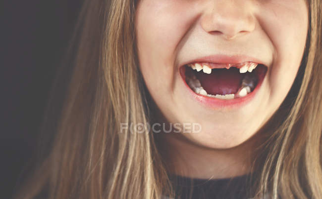 Gap toothed girl laughing — Stock Photo