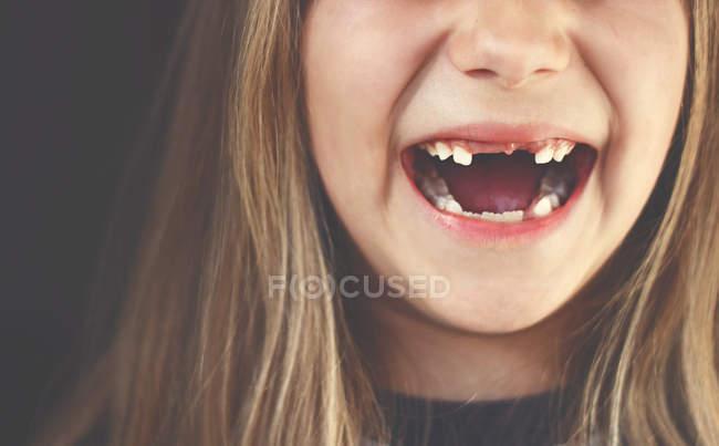 Lücke gezahnten Mädchen Lachen — Stockfoto